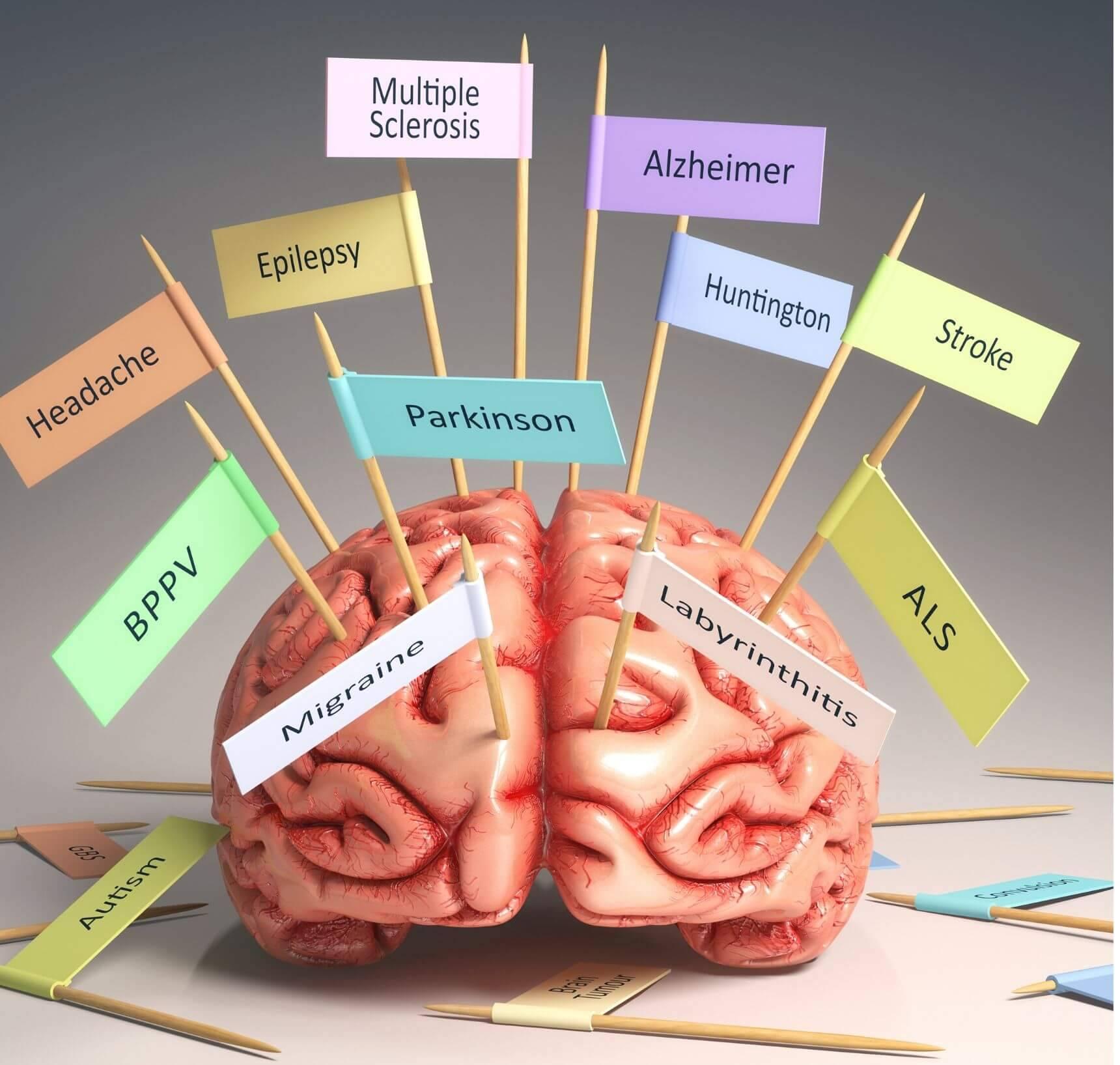 suiker brein