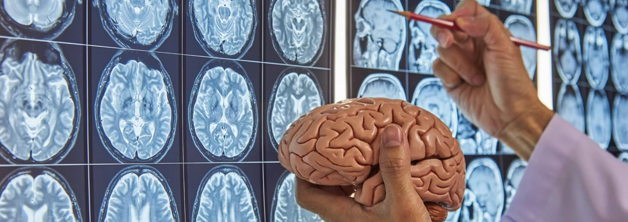 invloed suiker en tarwe op brein