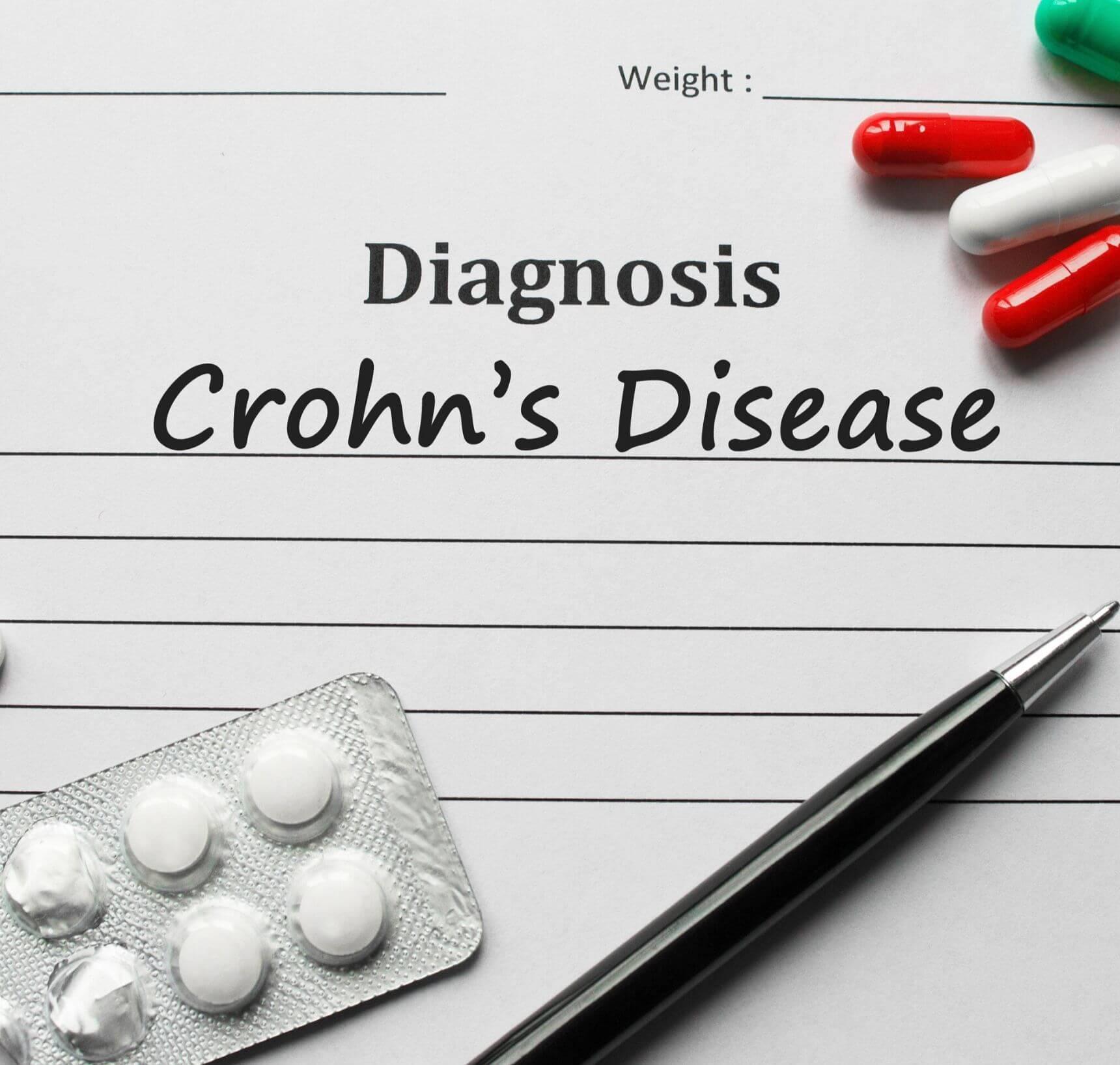 crohn ziekte